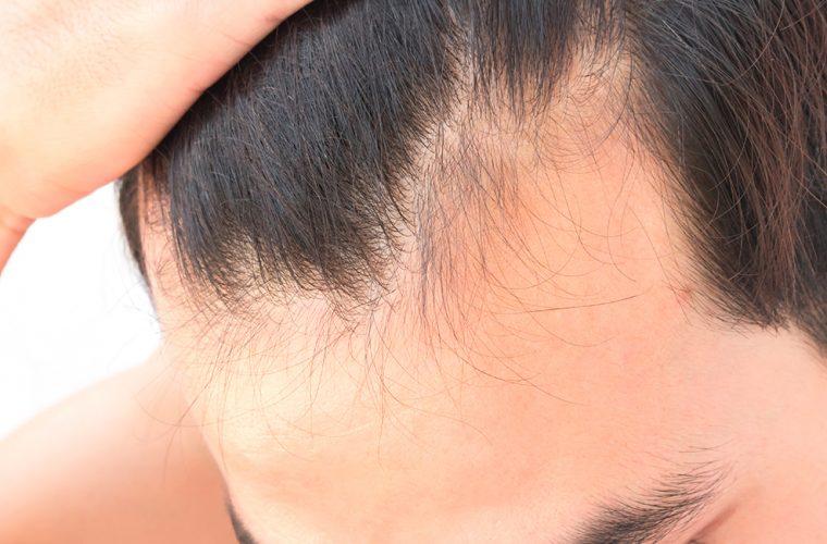 perdita di capelli